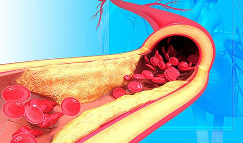 Hypertension improvement program associated with increase in blood pressure control rates