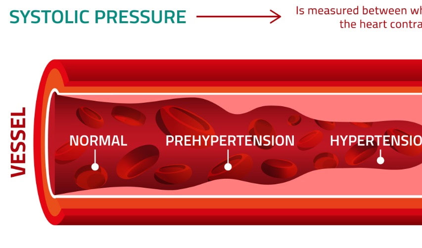 Large study of hypertension patients highlights key moments at which to intervene